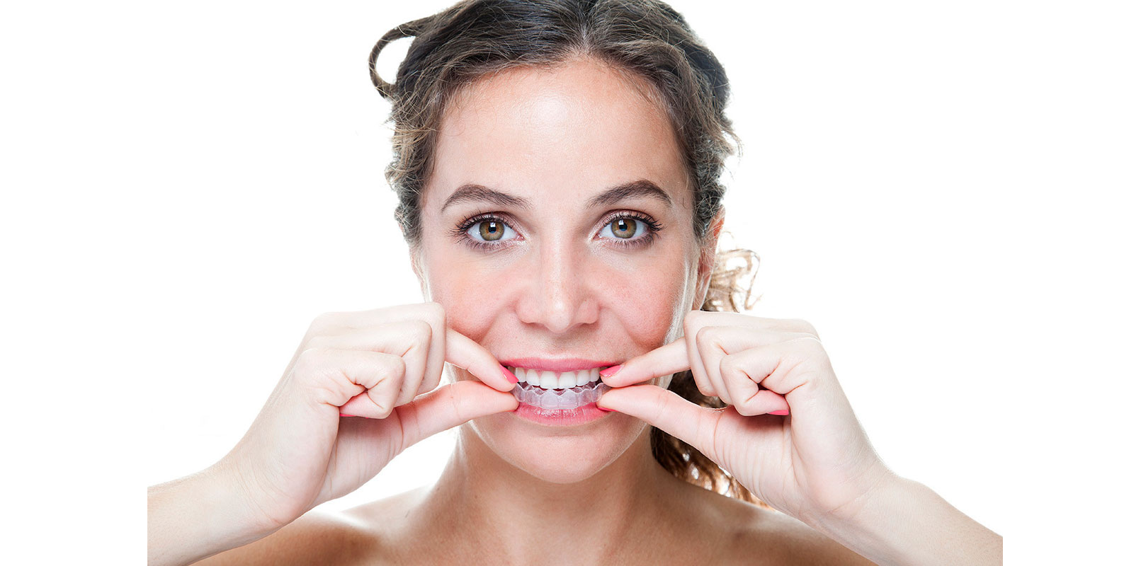 Invisalign Braces Tipperary