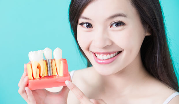 Smiling woman holding synthetic teeth