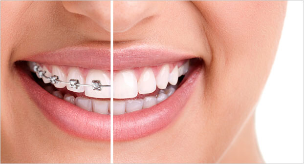 fantastic results of orthodontic treatments